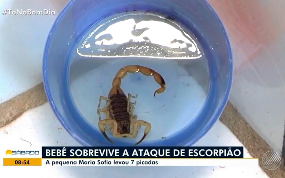 Criança foi picada sete vezes por escorpião na Bahia — Foto: Reprodução/TV Bahia