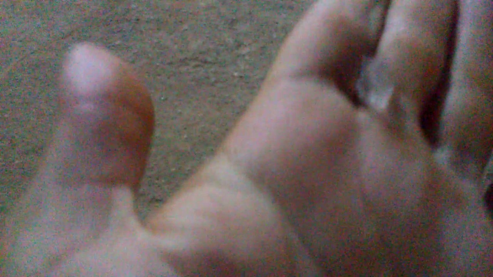 Chuva de granizo é registrada no Agreste sergipano