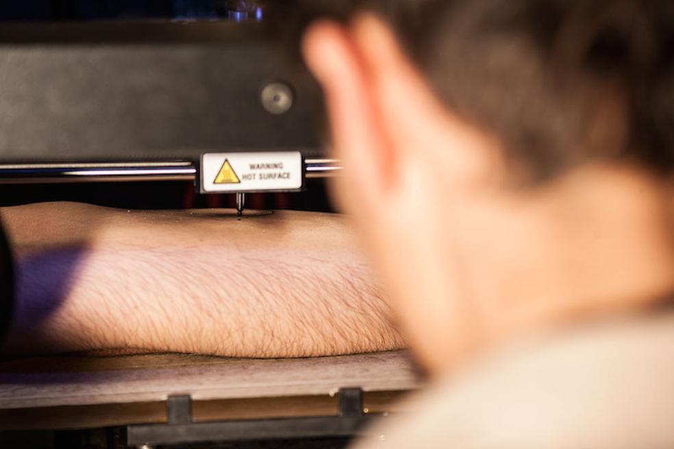 Impressora 3D adaptada se transforma em máquina de tatuagem (Foto: Divulgação)