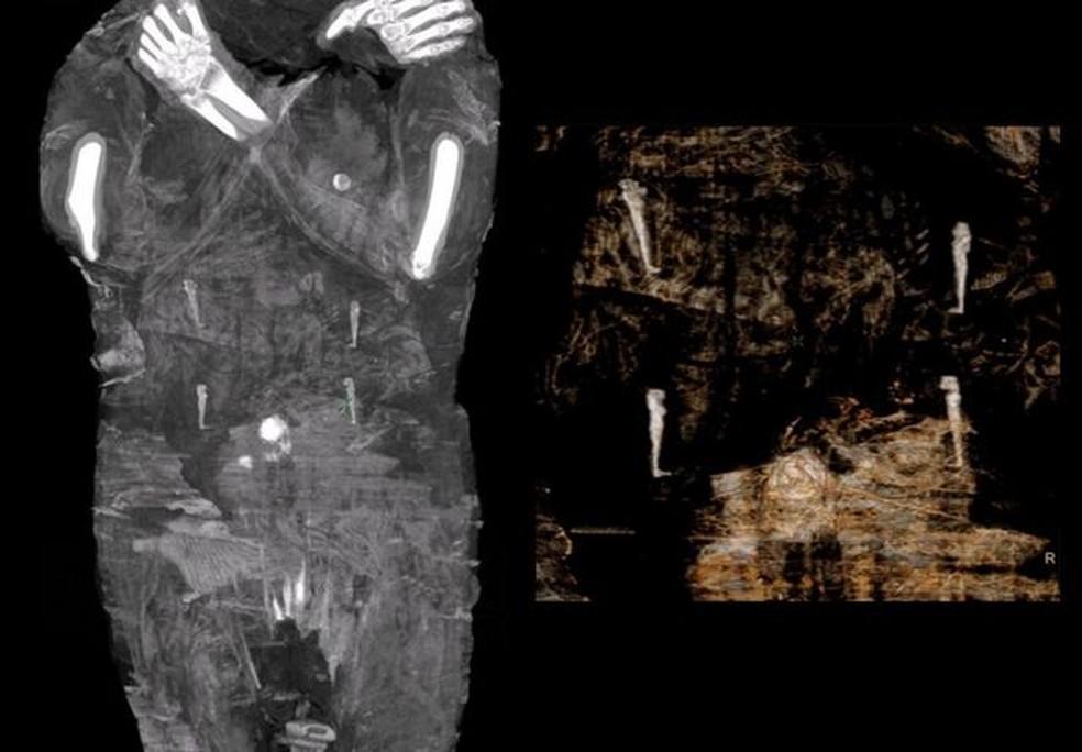 Amuletos, considerados itens conhecidos como os Quatro Filhos de Hórus, acompanham o corpo mumificado — Foto: Warsow Mummy Project/Via BBC