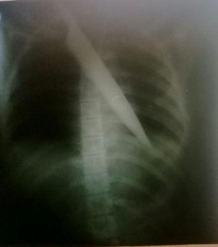 No AC, adolescente é encontrada com faca cravada no peito e polícia investiga o caso