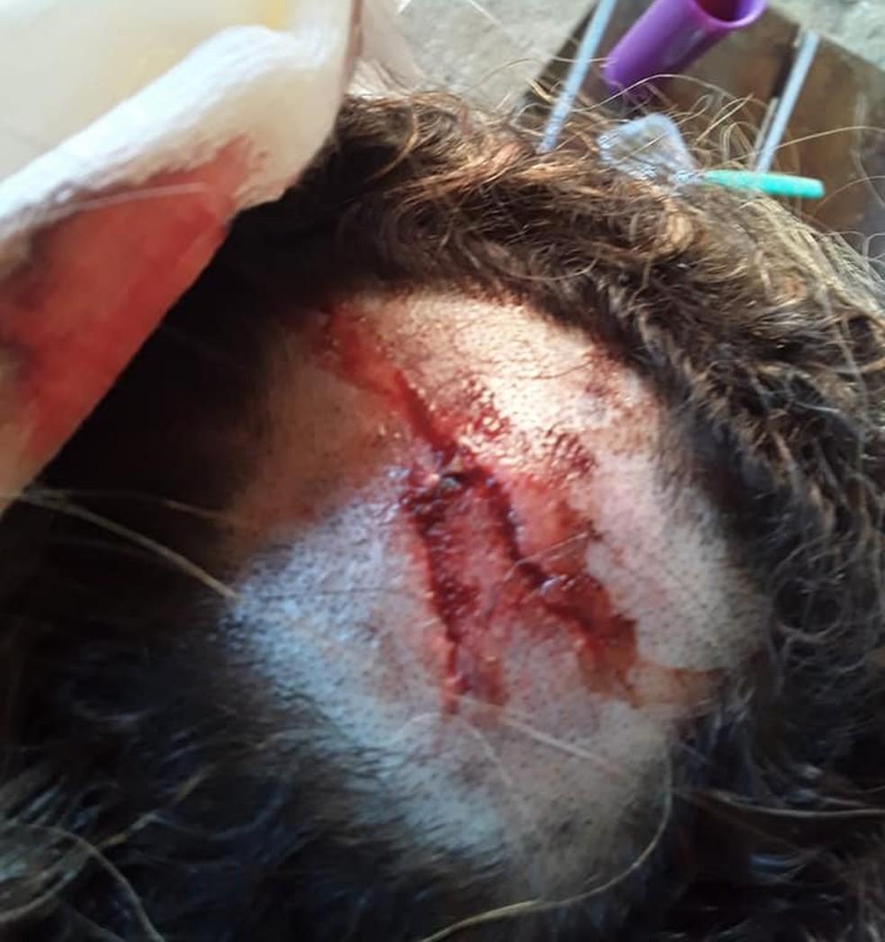 Hematoma na cabeça de Cleide após ser atacada em Porto Velho — Foto: Arquivo Pessoal