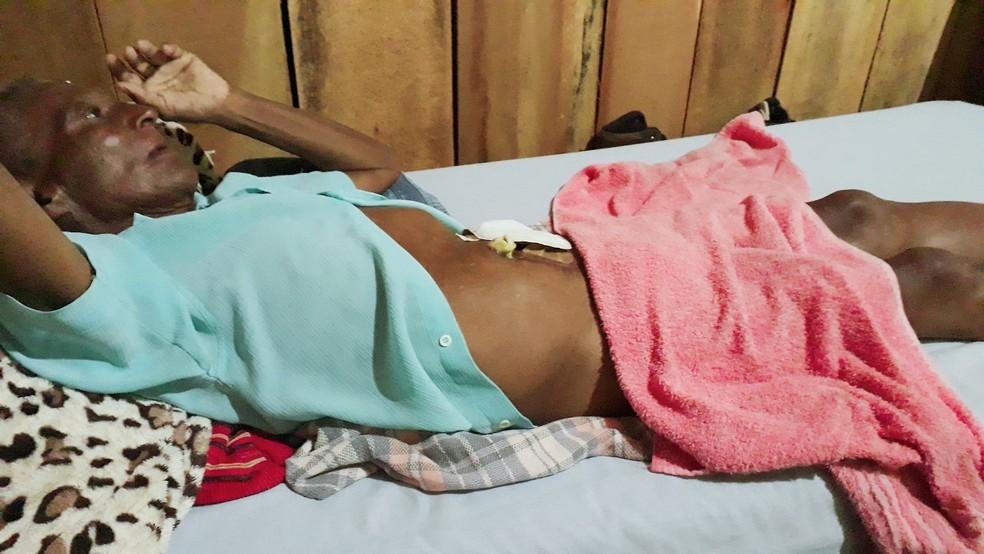 Bento Ferreira, de 57 anos, está internado após a cirurgia para retirada do material (Foto: Edson Ferreira/Arquivo Pessoal)
