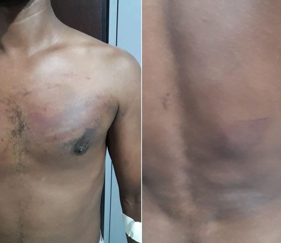 Caseiro foi espancado enquanto foi mantido em cárcere no litoral de SP — Foto: Divulgação/Polícia Civil