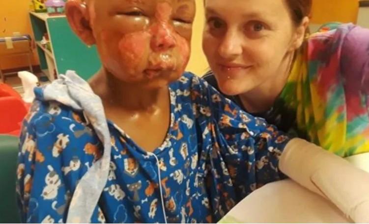 """Julien, 7 anos, se recupera da queimadura em hospital (Foto: Reprodução Go Fund Me, site de """"vaquinha"""" virtual)"""