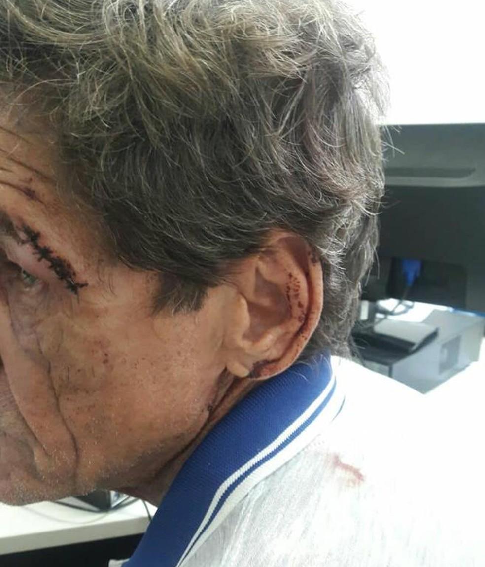 Vítima foi agredida no rosto com barras de ferro (Foto: Divulgação)