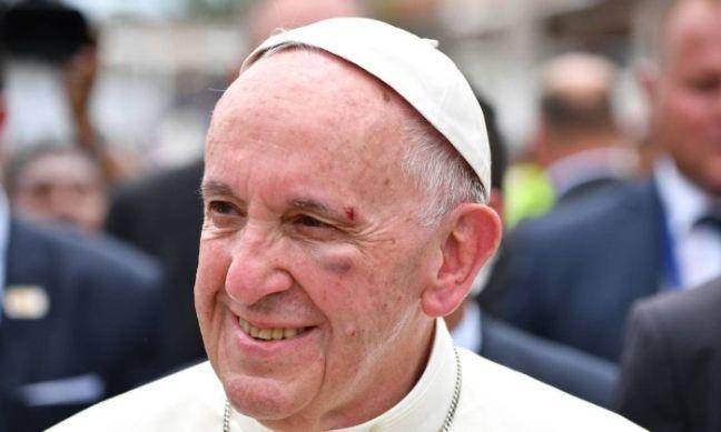 """O Papa Francisco feriu o rosto durante sua passagem pela cidade de Cartagena, na Colômbia. Ao passar pelo bairro de San Francisco o Pontífice tentou cumprimentar um menino e bateu o rosto no vidro do """"papamóvel"""" (Foto: Alberto Pizzoli / AFP / O Globo)"""