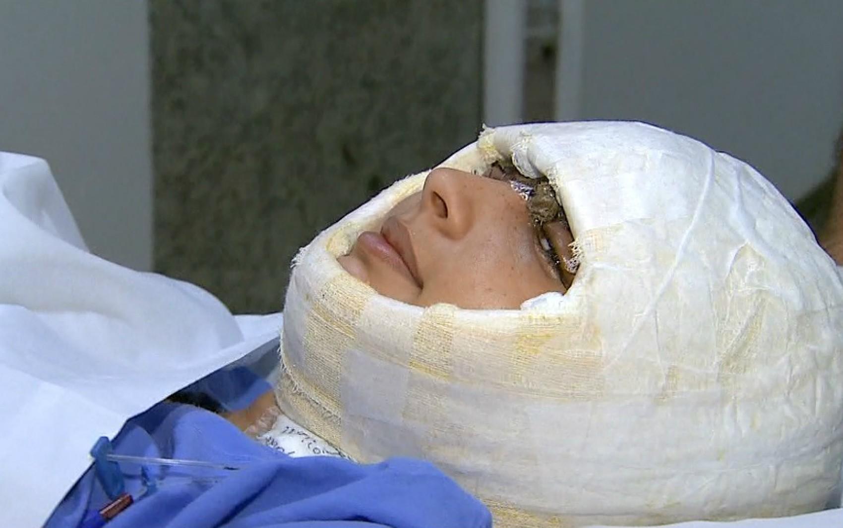 Chega a 5 horas transplante de pele em jovem que teve couro cabeludo arrancado em kart - Notícias - Plantão Diário