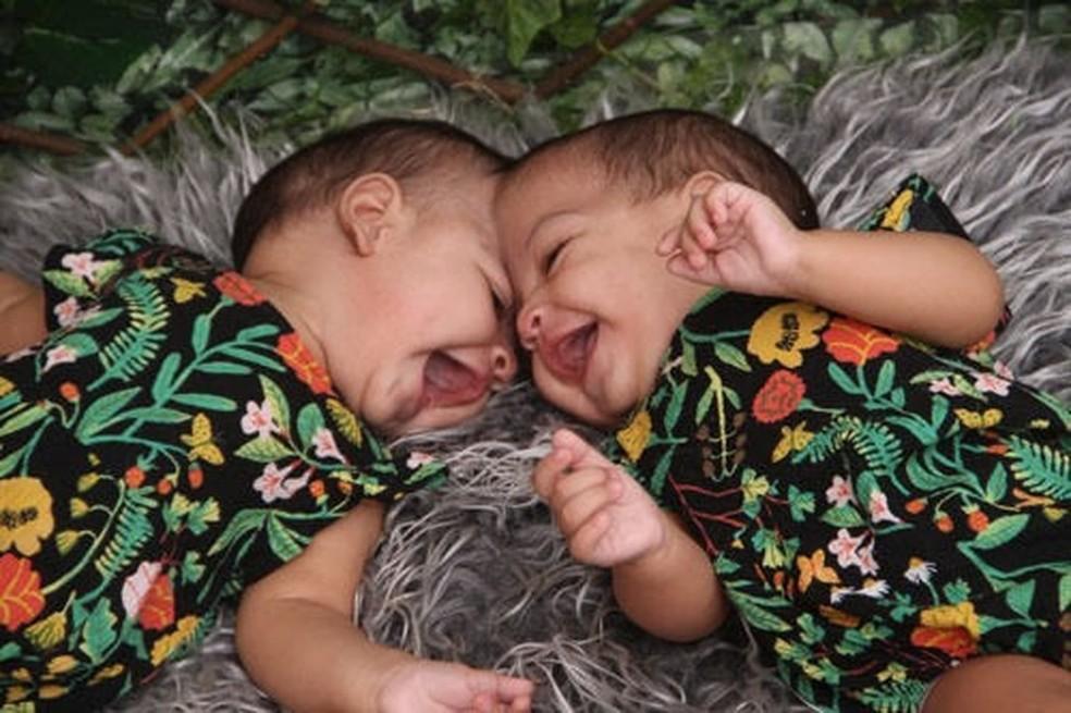 Mel e Lis nasceram com parte do cabeça ligada. Bebês passaram por cirurgia inédita no DF  — Foto: Luci Vânia