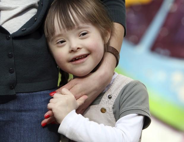 Síndrome de Down não é doença!  (Foto: Thinkstock)