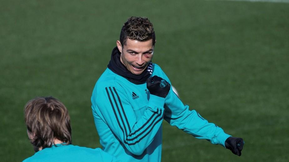 Cristiano Ronaldo treina com o olho roxo, mas não pega o Leganés na quarta