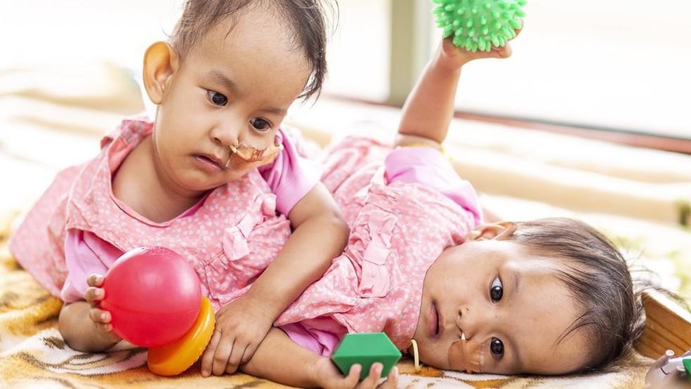 As gêmeas Nima e Dawa nasceram unidas pelo torso — Foto: EPA/BBC
