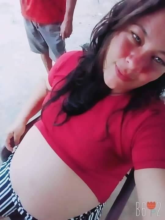 Grávida de gêmeos infectada com Covid passa por cesárea e um dos bebês morre em Boa Vista
