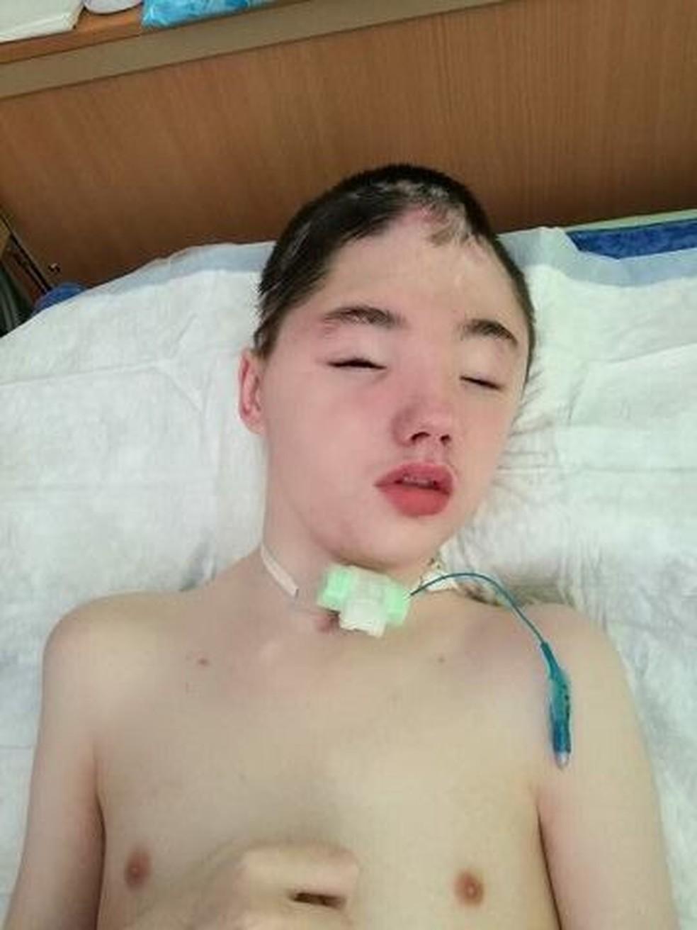 Vanya Krapivin passou 19 meses internado e perdeu parte do crânio após tentar evitar que vizinho estuprasse a mãe — Foto: Dr. Lisa/VK/Reprodução