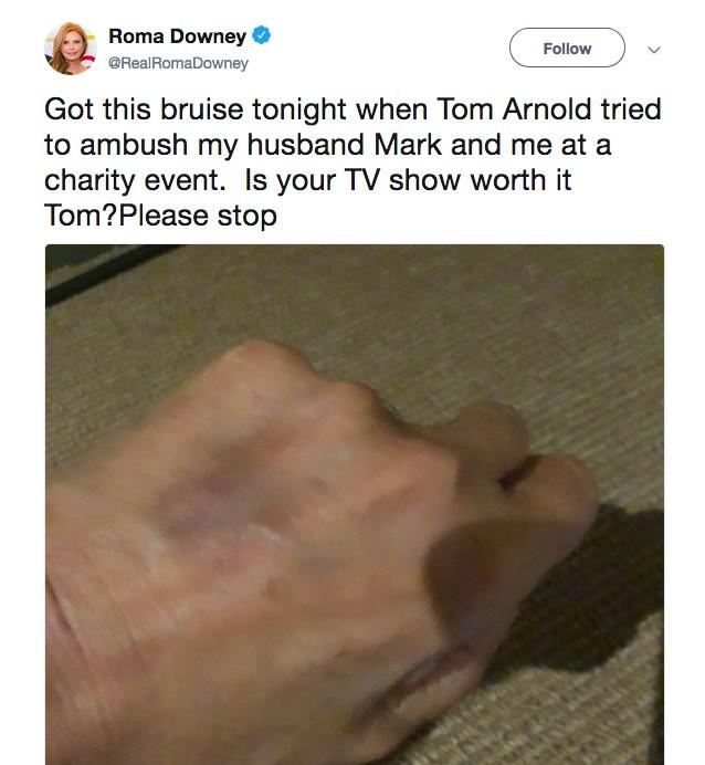 O foto compartilhada pela esposa do produtor que Tom Arnold acusa de tê-lo agredido (Foto: Twitter)