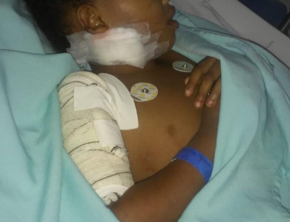 Menina de 6 anos é atacada por pit bull e passa por cirurgia para reconstruir braço na BA — Foto: Arquivo Pessoal