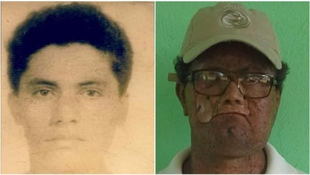 Deíde aos 18 anos e agora; por causa da doença xeroderma pigmentosum, ele perdeu parte do rosto (Foto: ARQUIVO PESSOAL)