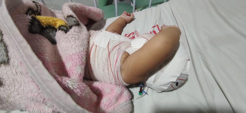 Hospital de MS atende muitas crianças queimadas; casos que poderiam ser evitados, diz médica — Foto: Santa Casa/Divulgação