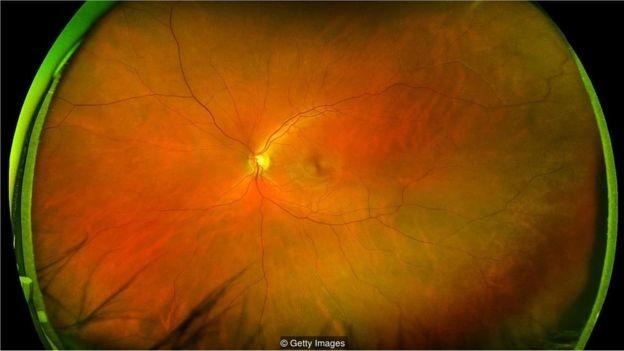 Os padrões de vasos sangüíneos na retina na parte posterior do olho revelam se você está correndo risco de sofrer um ataque cardíaco (Foto: Getty Images via BBC News Brasil)
