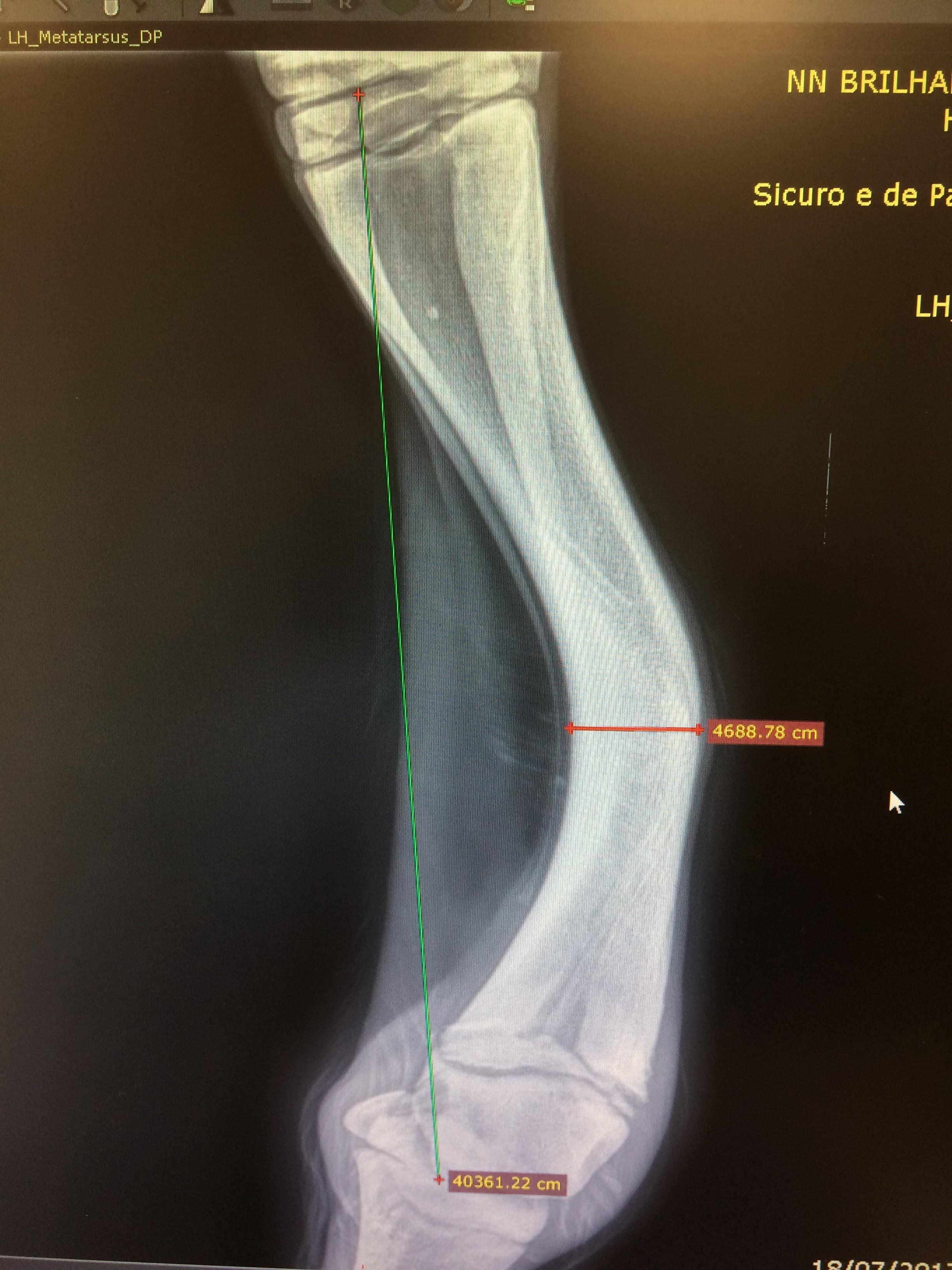 Raio-X mostra a deformação óssea da potra Bailarina antes da cirurgia (Foto: Divulgação)