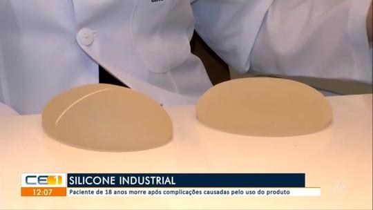 Travesti morre depois de implantar silicone industrial