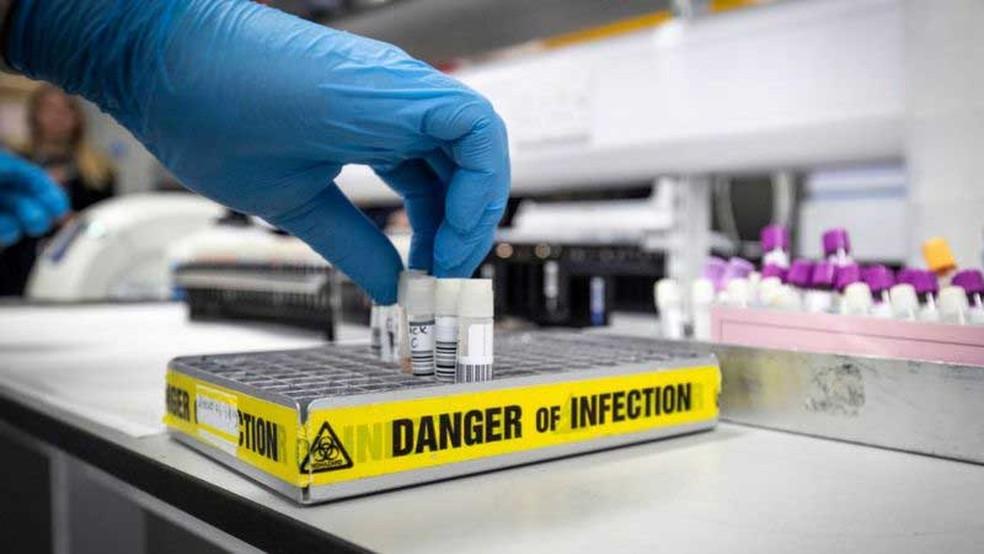 Os cientistas estão analisando as reações do corpo à chegada do vírus e sua relação com a genética — Foto: Getty Images