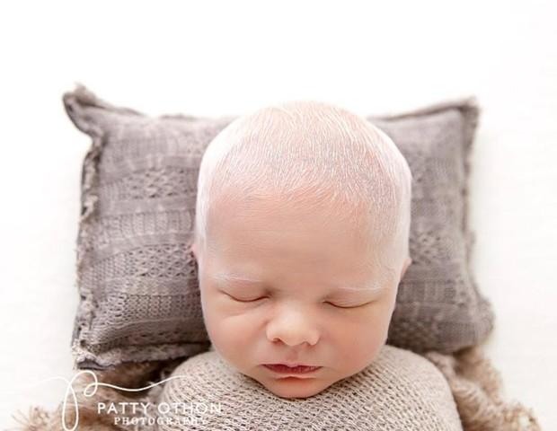 Bebê albino (Foto: Reprodução Instagram)