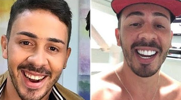 Carlinhos Maia fez procedimento nos dentes (Foto: Reprodução/Instagram)