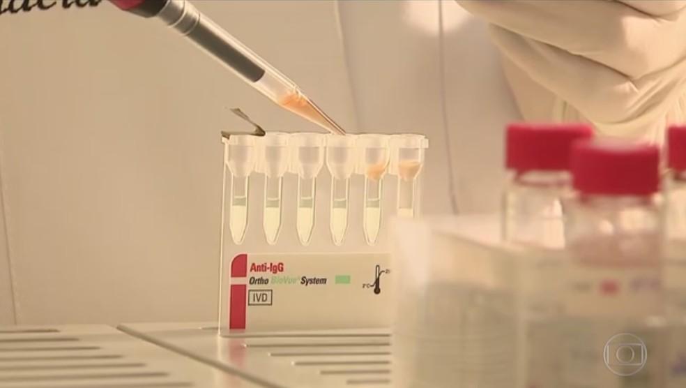 Teste criado por brasileiros é capaz de diagnosticar Alzheimer em 30 minutos (Foto: Reprodução/TV Globo)