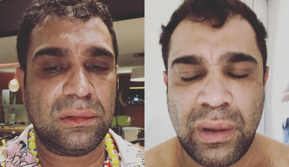 Evandro Santo, ex-Pânico, relata agressão após show: 'Homofobia e covardia'  | Bauru e Marília | G1