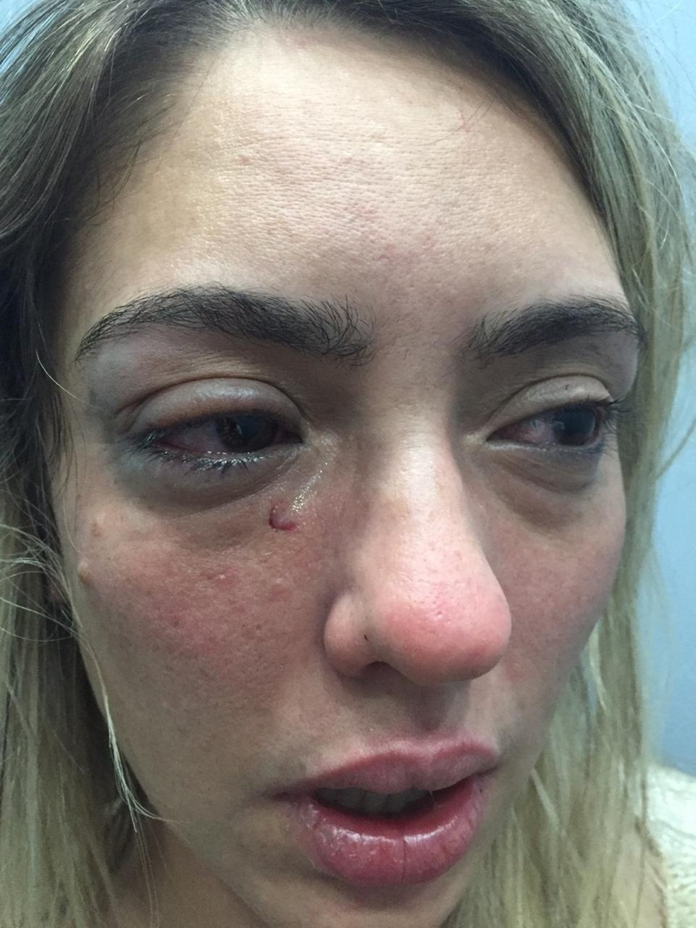 Myriam Gadelha denunciou prefeito de Sousa após ser agredida na Paraíba — Foto: Arquivo Pessoal