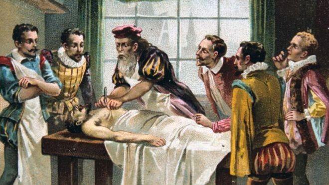 O médico militar francês do século 16 Ambroise Pare é considerado por muitos o pai da cirurgia moderna (Foto: GETTY IMAGES via BBC)
