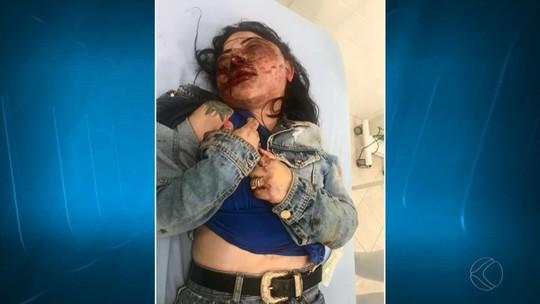 Médico fala sobre saúde de mineira vítima de tentativa de feminicídio no ES