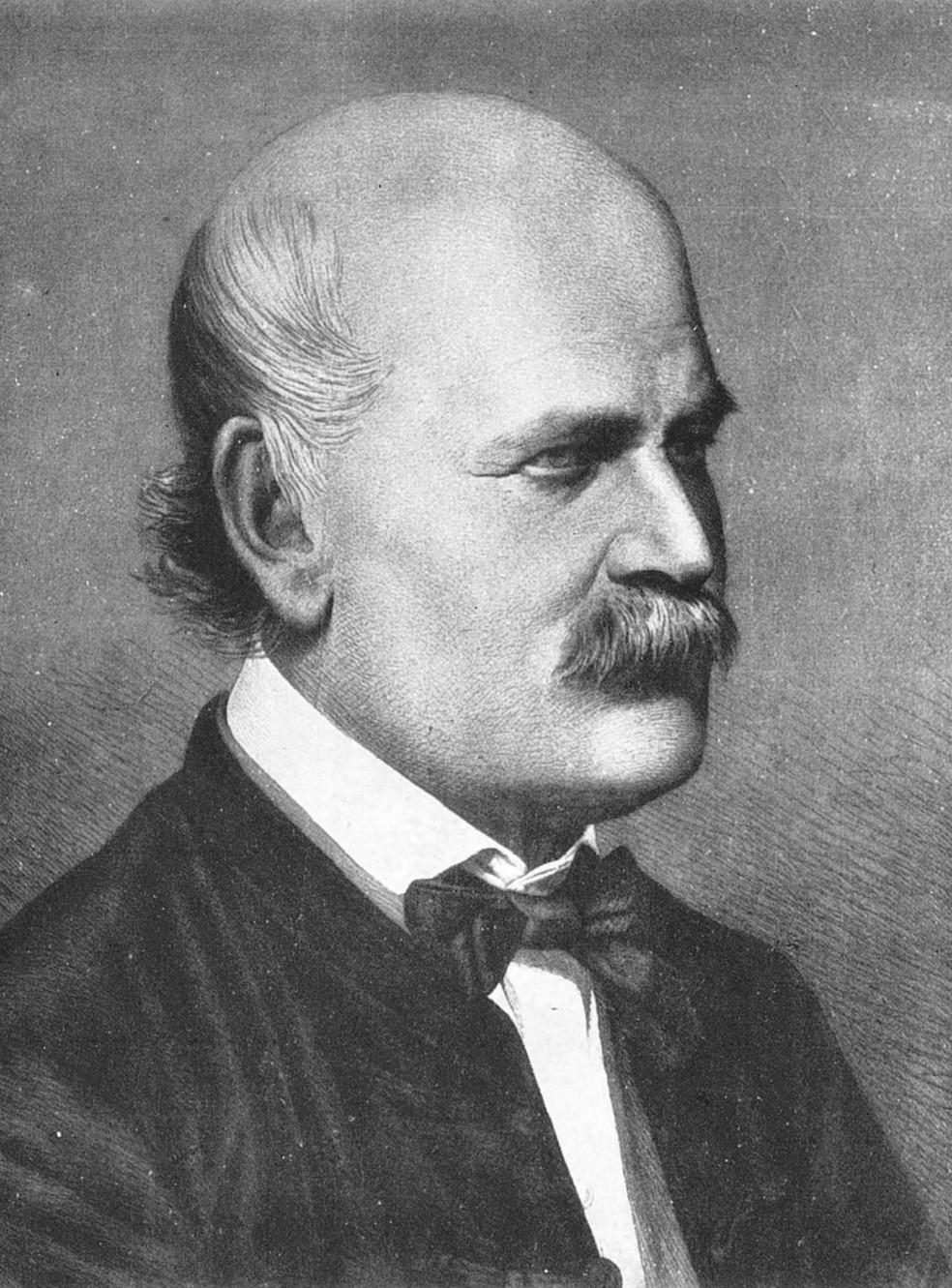 Ignaz Semmelweis, o médico colocado em manicômio por insistir na importância de se lavar as mãos