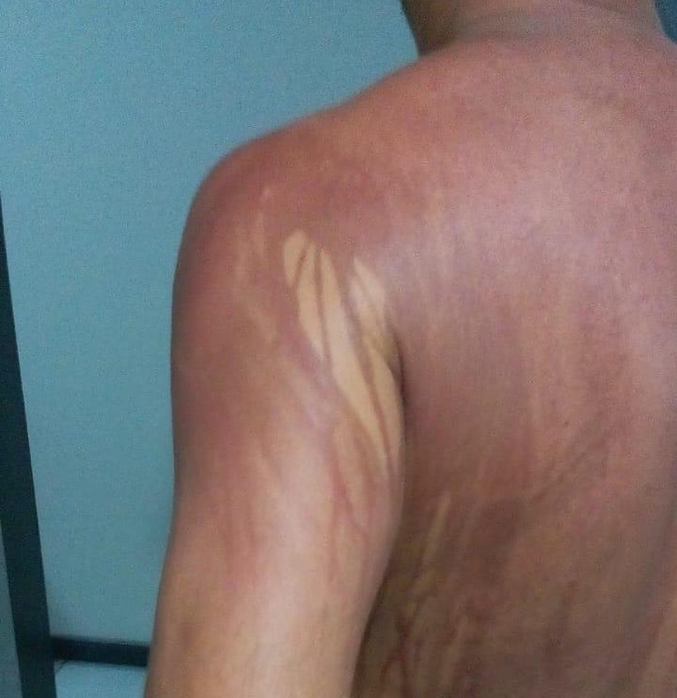 Turista de MG fica com manchas no corpo após banho de mar no sul da Bahia — Foto: Arquivo Pessoal
