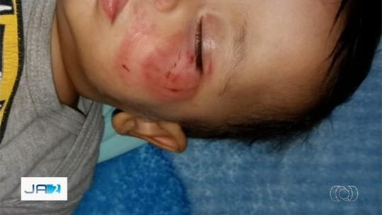 Bebê é mordido cerca de dez vezes por colega em creche de Piracanjuba