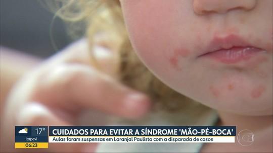 """Casos de síndrome """"mão-pé-boca"""" se multiplicam em Laranjal Paulista e Itapeva"""
