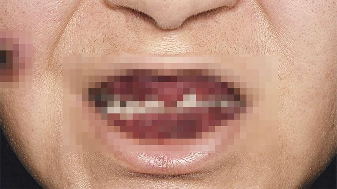 """Mulher sofre de um tipo de gengivite raro ( Granulomatose com poliangiite), que deixou a sua boca com aparência similar a um """"morango"""" (Foto: The New England Journal of Medicine ©2017)"""