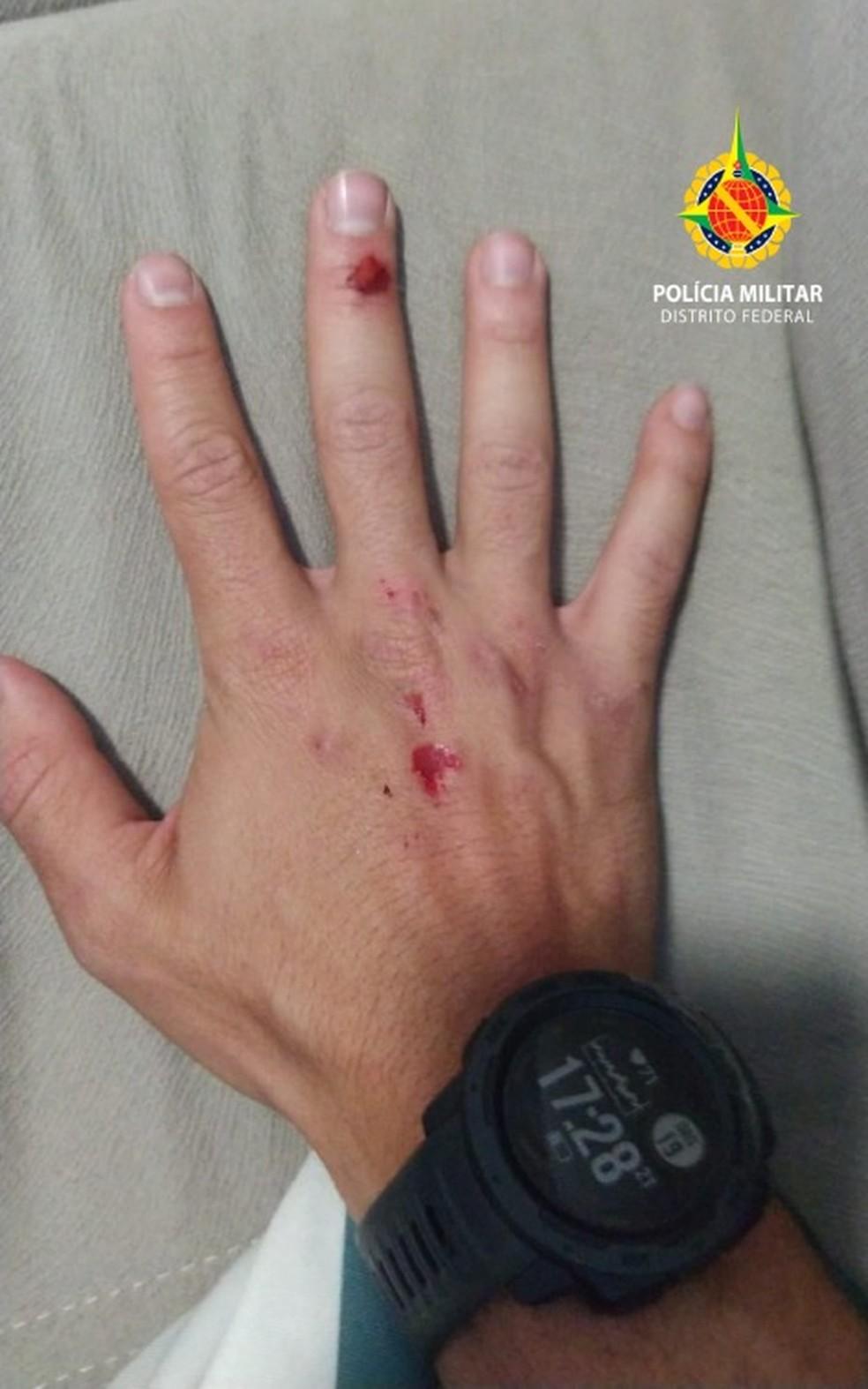 Policial fica ferido após homem usar carro para tentar atropelar militares, no DF — Foto: PMDF/Divulgação