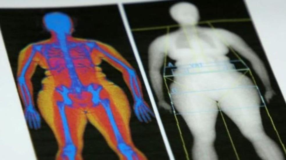 Jornalista da BBC diz que se considera uma pessoa saudável por fora, mas não sabe o que está sob sua pele (Foto: BBC)
