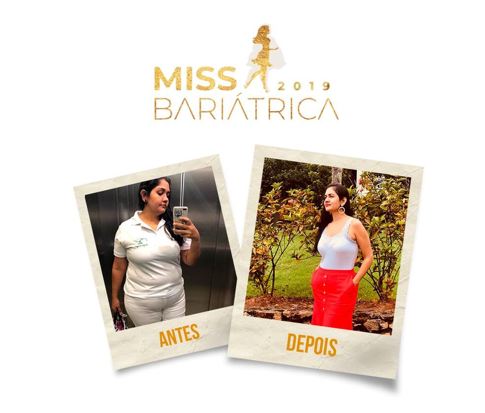 Ana Paula Figueiredo, 35 anos, candidata do Miss Bariátrica  — Foto: Divulgação