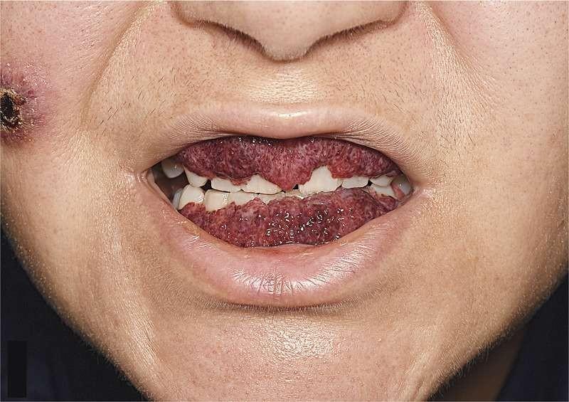 """Mulher tem doença rara da """"boca de morango"""" (Foto: The New England Journal of Medicine ©2017)"""