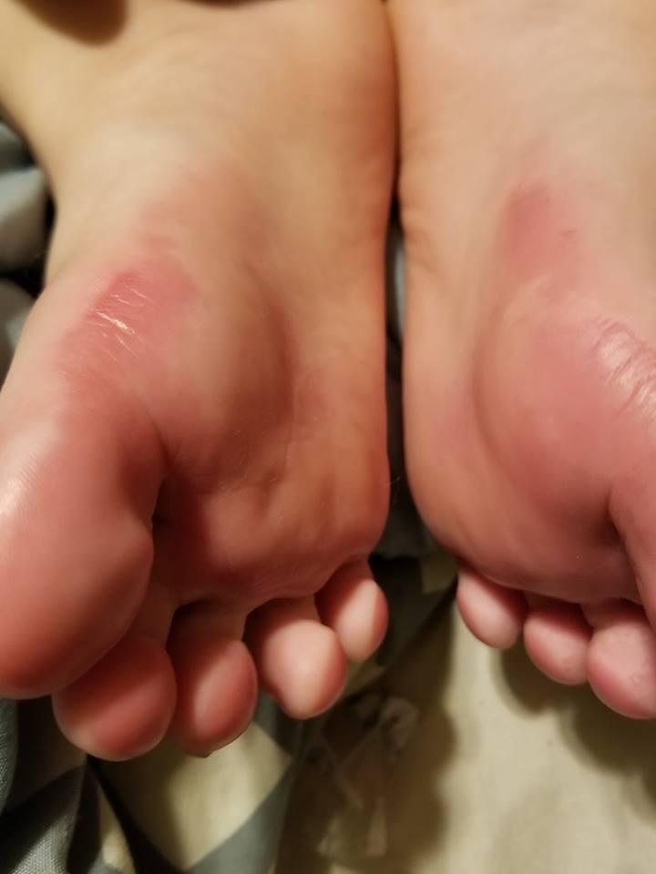 Os pés do garoto tiveram queimaduras de segundo grau. (Foto: Reprodução/ Facebook)