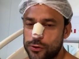 Fred fratura o nariz, é operado e pode perder a estreia do Cruzeiro (Reprodução )