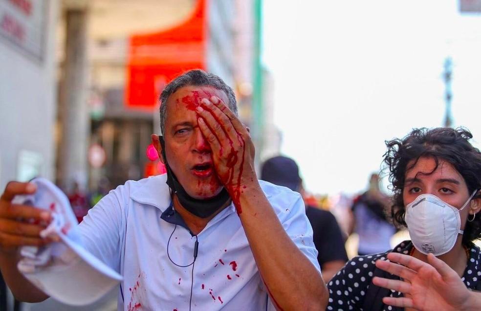 Daniel da Silva foi atingido no olho por bala de borracha atirada pela PM durante protesto contra Bolsonaro no Recife, no sábado (29) — Foto: Hugo Muniz