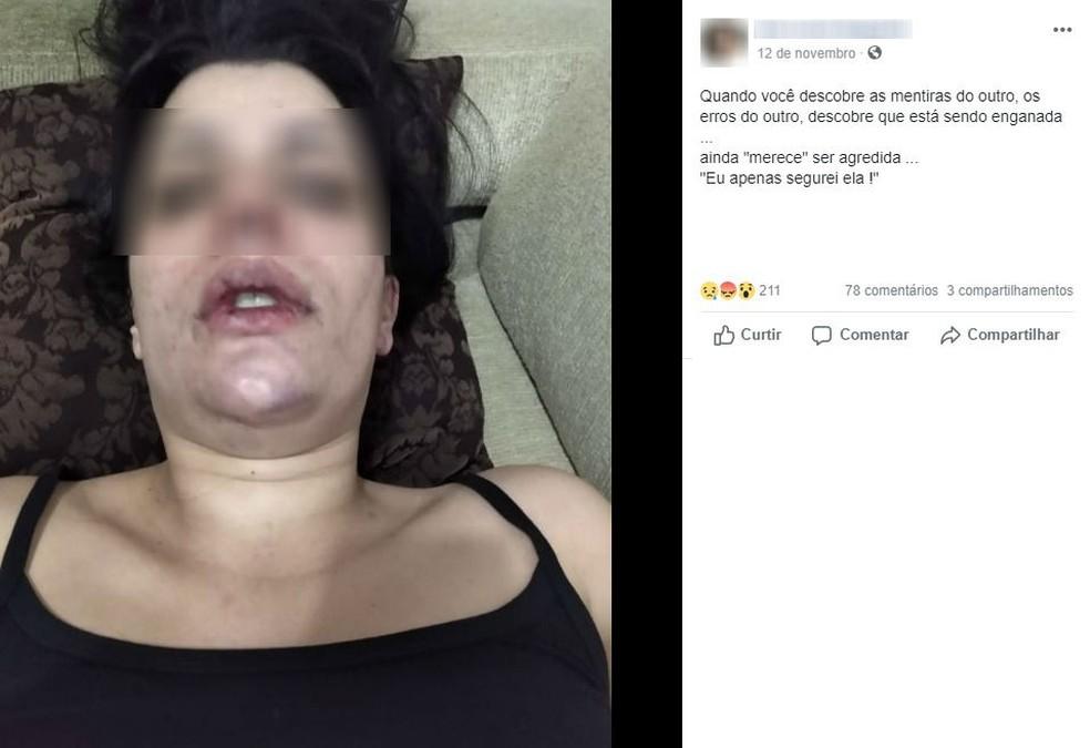 Jovem usou as redes sociais para denunciar uma suposta agressão em Votorantim — Foto: Reprodução/Facebook