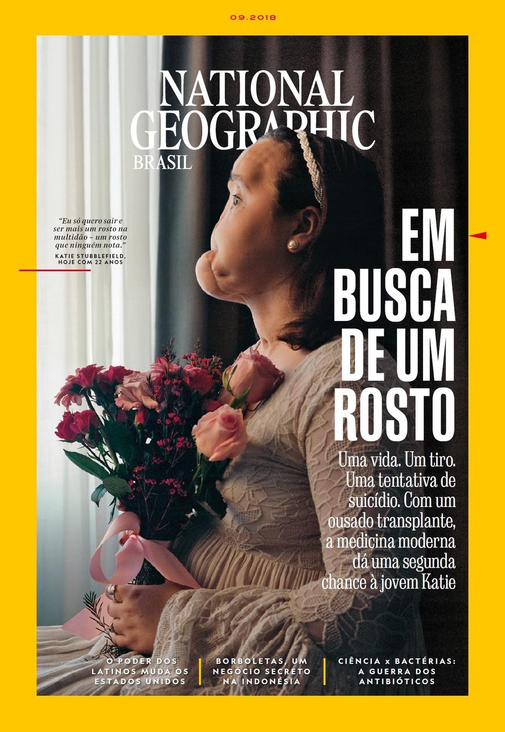 A reportagem que conta a história de Katie é capa da edição de setembro da revista National Geographic. A foto mostra o rosto da americana ainda antes de passar pelo transplante (Foto: National Geographic)