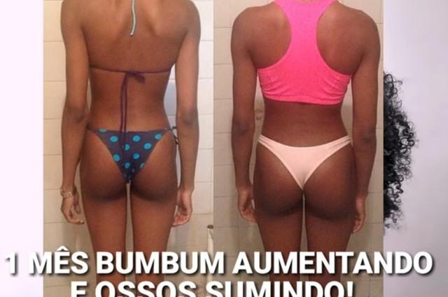 Camila de Lucas antes e depois de engordar 11 quilos (Foto: Reprodução)