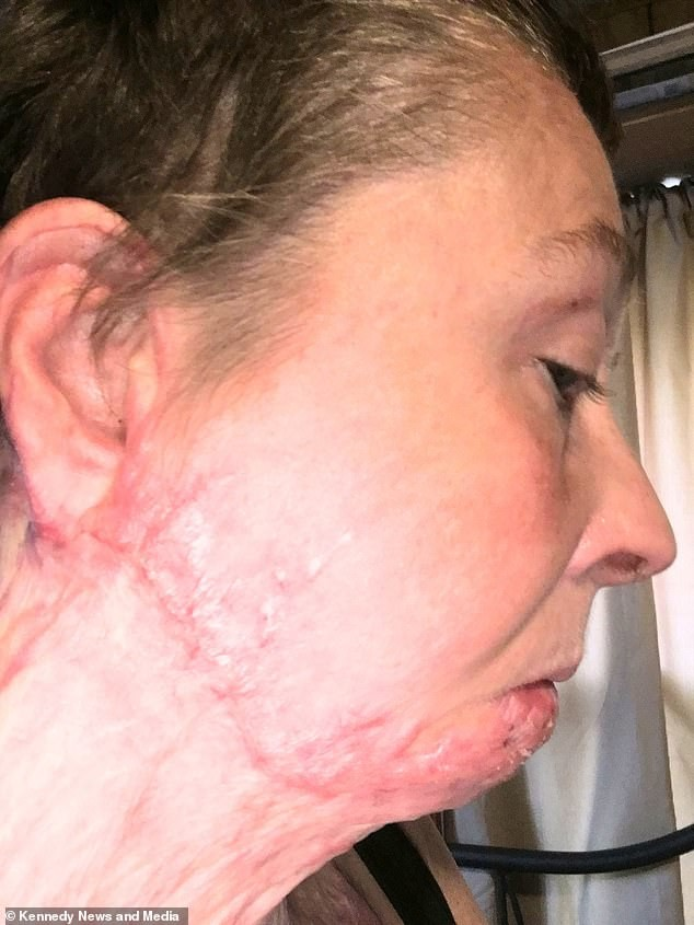 Mulher compartilha mensagens de apoio após ter corpo queimado em fogueira (Foto: Reprodução / Daily Mail)