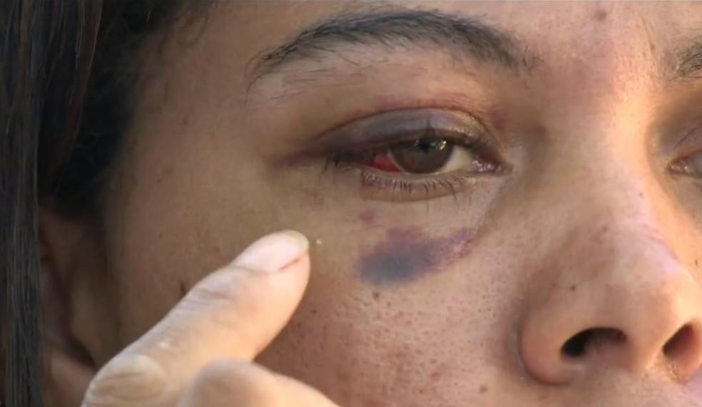Rauliane foi agredida pelo companheiro próximo do Dia das Mães desse ano — Foto: Raphael Verly/TV Gazeta